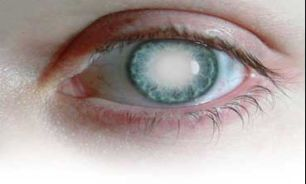 Paper cataract and its treatment