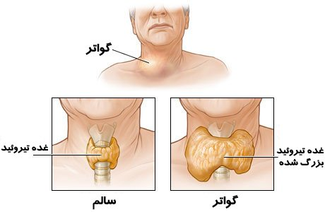 Paper the role of nutrition in disease goiter
