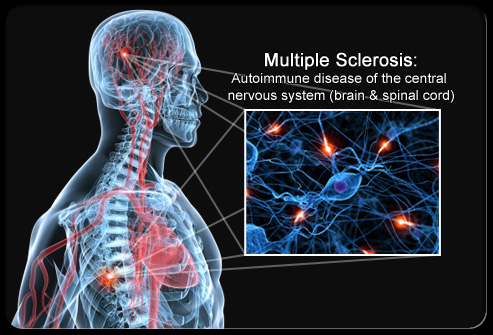 Paper Multiple Sclerosis